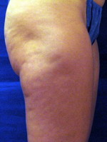 VelaShape - Before