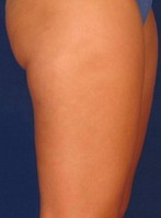 VelaShape - After