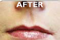 Restylane - After