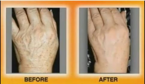 remove age spots on hands